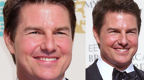 Tom Cruise, Kirurgi, Botox, Fillers, Bafta Awards, Operationer