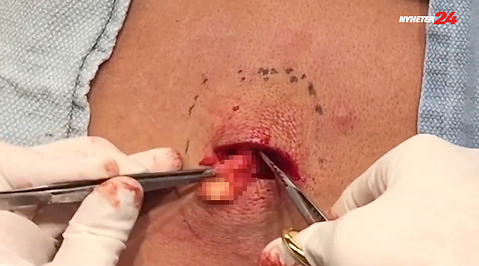Operation, Pimple Popper