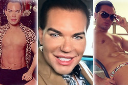 Operationer, Ken,  Rodrigo Alves